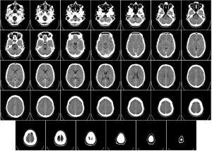 computer tomography 62942 1280 300x214 - Was versteht man unter der sekundär progredienten MS?