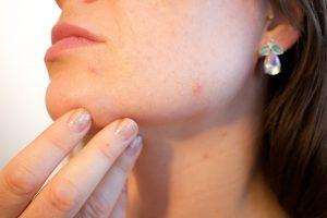 acne 1606765 1280 300x200 - CBD bei Insektenstichen, Pickeln und Wunden - Kann CBD bei Hautproblemen helfen?