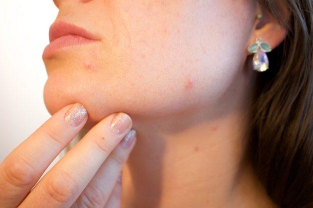 acne 1606765 1280 624x416 - CBD bei Insektenstichen, Pickeln und Wunden - Kann CBD bei Hautproblemen helfen?