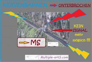 nervenbahn unterbrhen 300x203 - Multiple Sklerose: Reine Nervensache - Warum wir so schwache Nerven haben